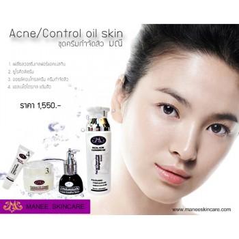 ชุดสำหรับผิวมัน  (Control Oil Skin Set)